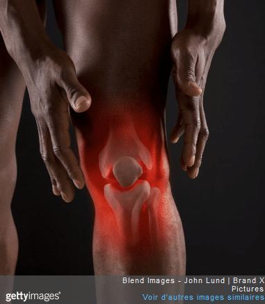 La pose d'une prothèse du genou entraîne une longue rééducation.